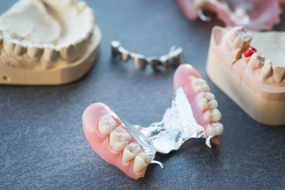 signs that indicate you need denture repairs