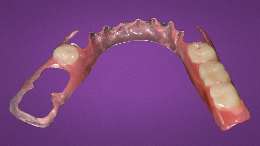 the best material for partial dentures